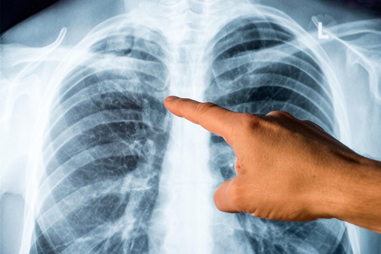 Tuberkulose 002